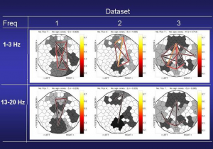Visualization of brain connectivity networks for three subjects from high-density EEG data in two frequency bands.